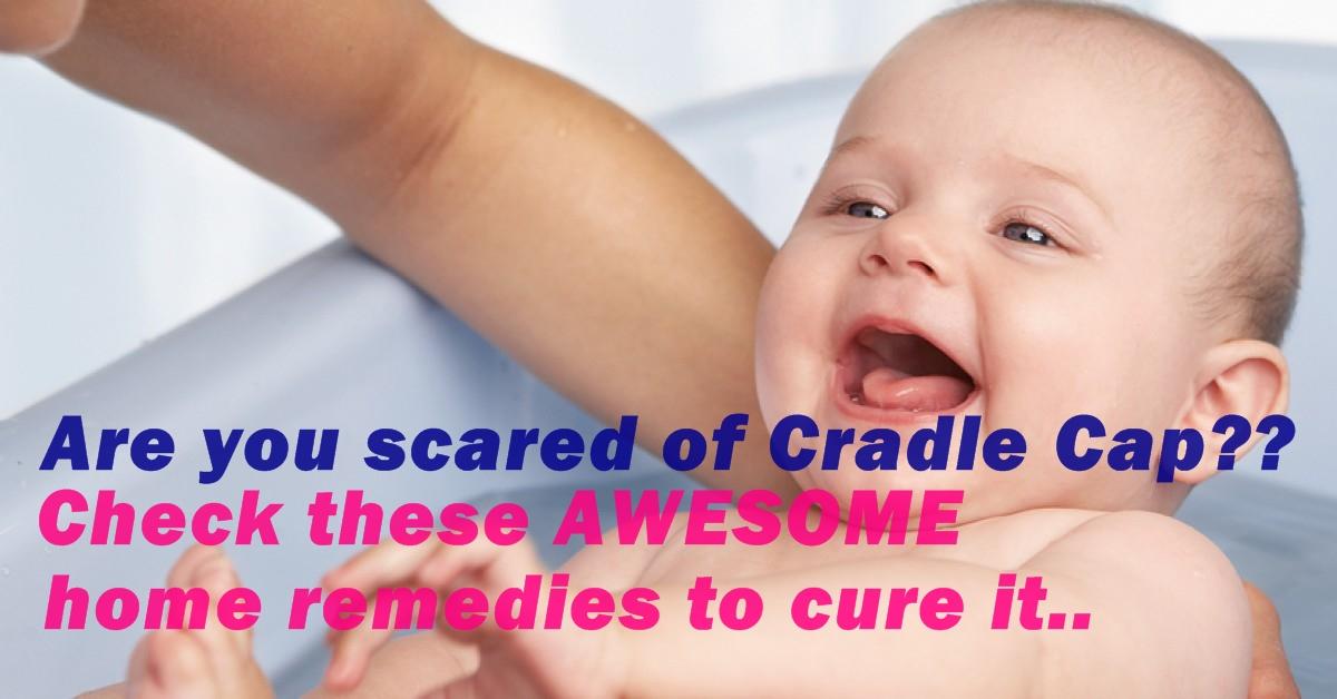 how to help cradle cap